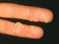 Vírus-szemölcs